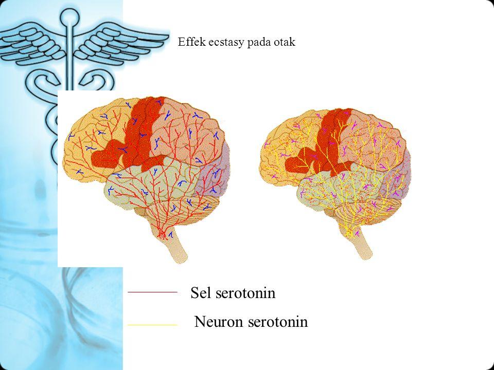 Effek ecstasy pada otak