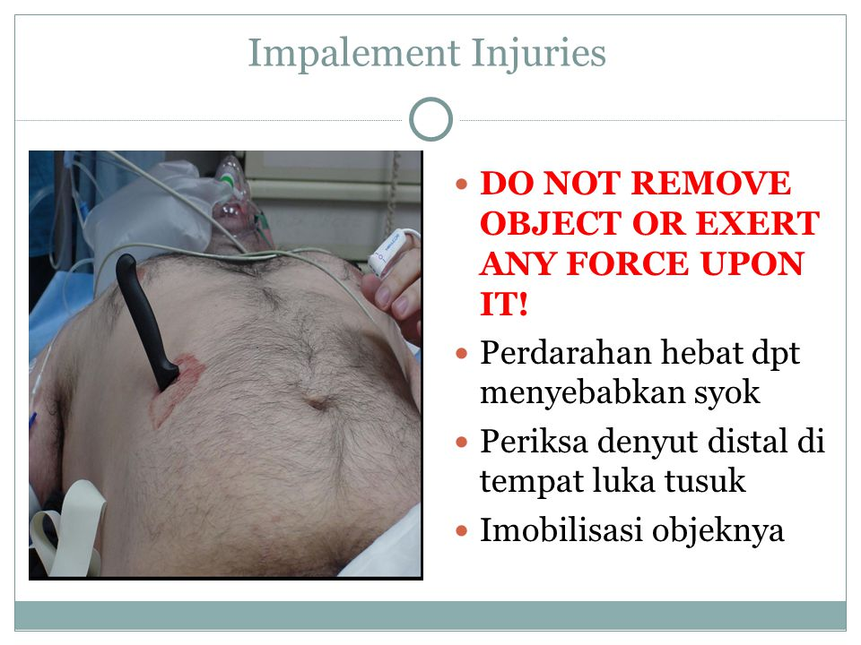 Impalement Injuries DO NOT REMOVE OBJECT OR EXERT ANY FORCE UPON IT!
