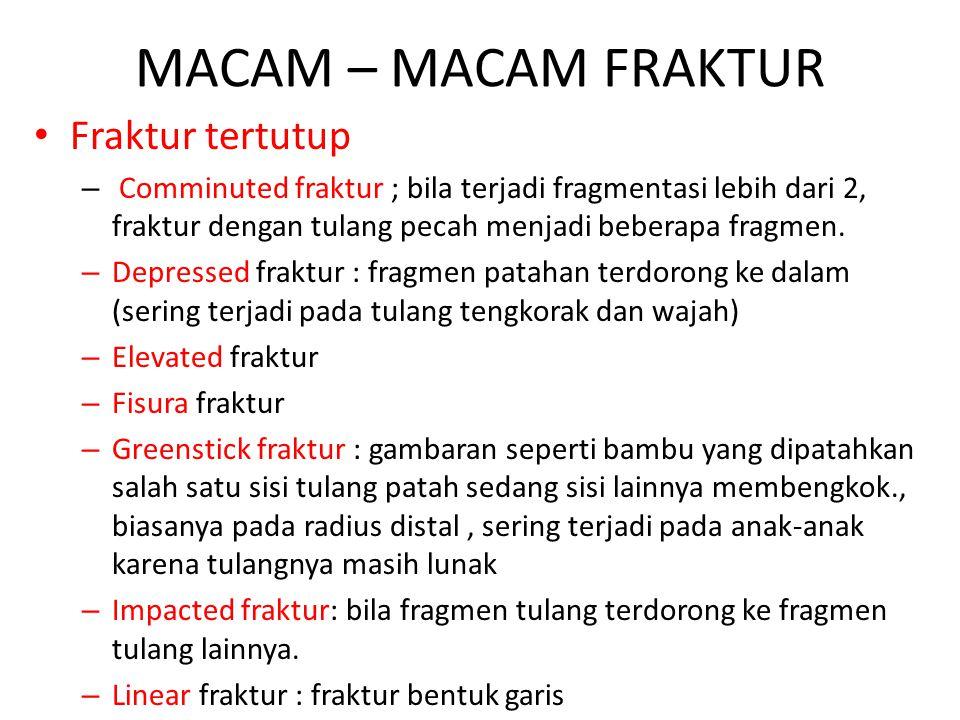 MACAM – MACAM FRAKTUR Fraktur tertutup