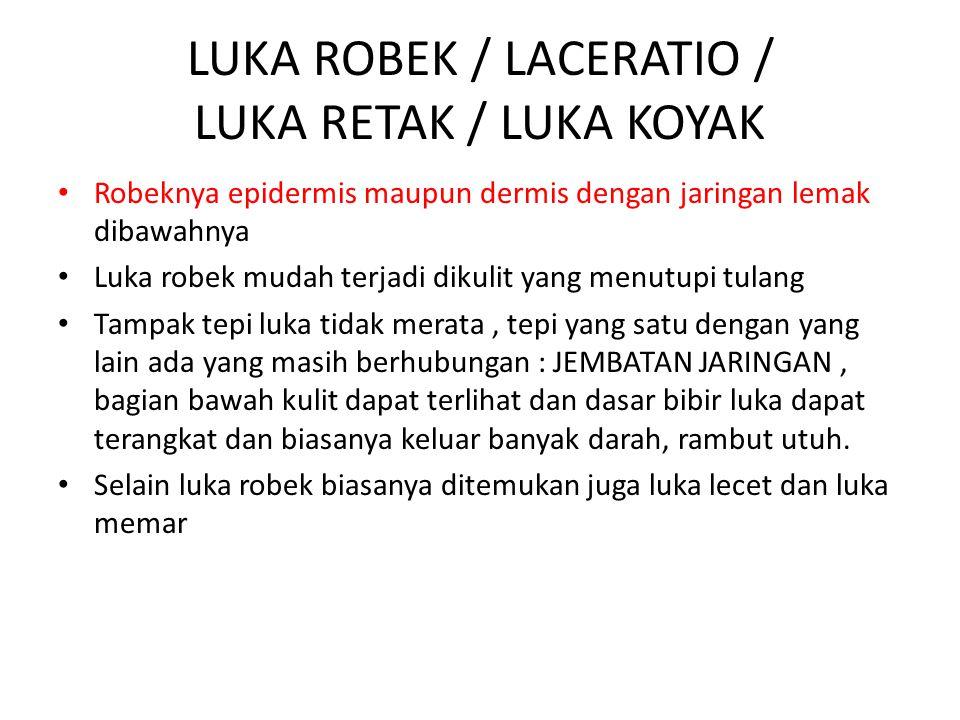 LUKA ROBEK / LACERATIO / LUKA RETAK / LUKA KOYAK