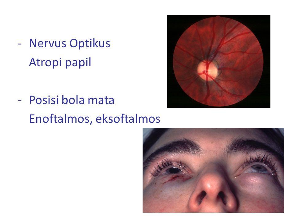 Nervus Optikus Atropi papil Posisi bola mata Enoftalmos, eksoftalmos