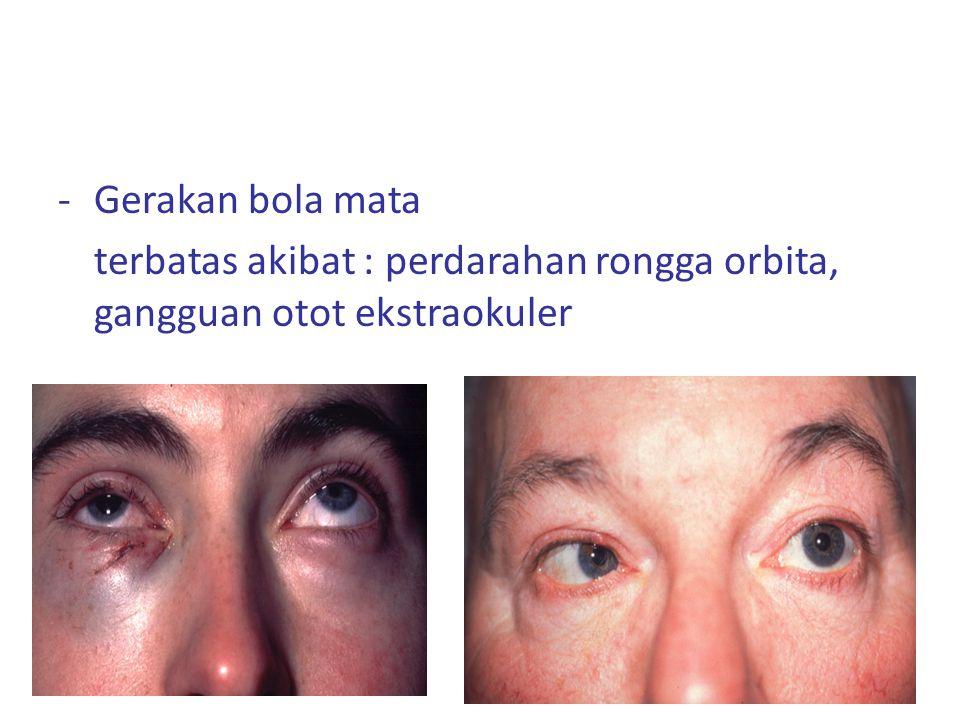 Gerakan bola mata terbatas akibat : perdarahan rongga orbita, gangguan otot ekstraokuler