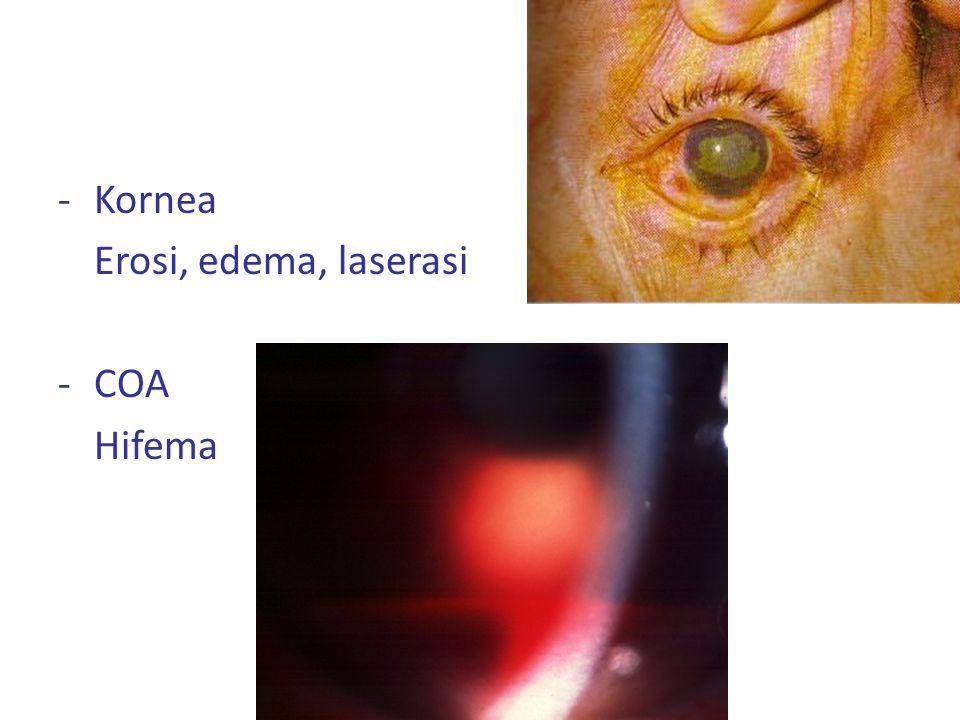 Kornea Erosi, edema, laserasi COA Hifema