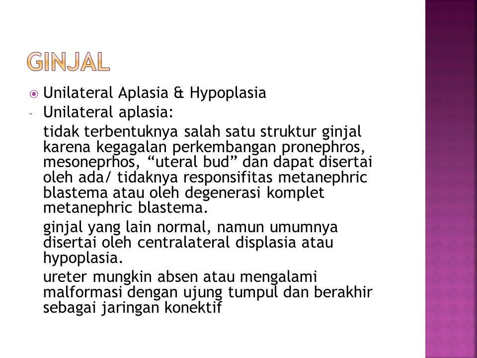 Ginjal Unilateral Aplasia & Hypoplasia Unilateral aplasia: