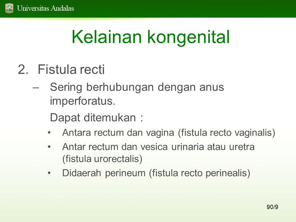 Kelainan kongenital Fistula recti