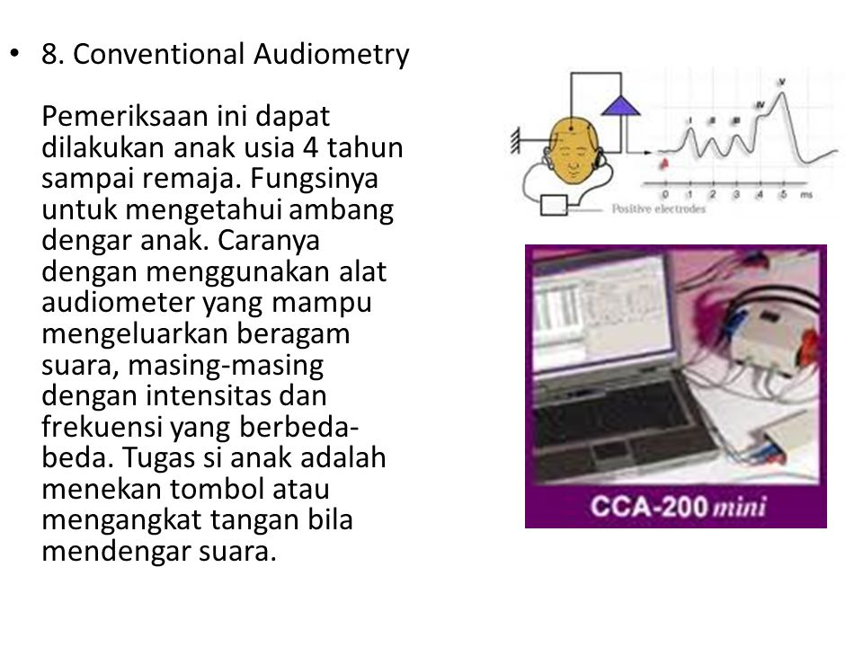 8. Conventional Audiometry Pemeriksaan ini dapat dilakukan anak usia 4 tahun sampai remaja.