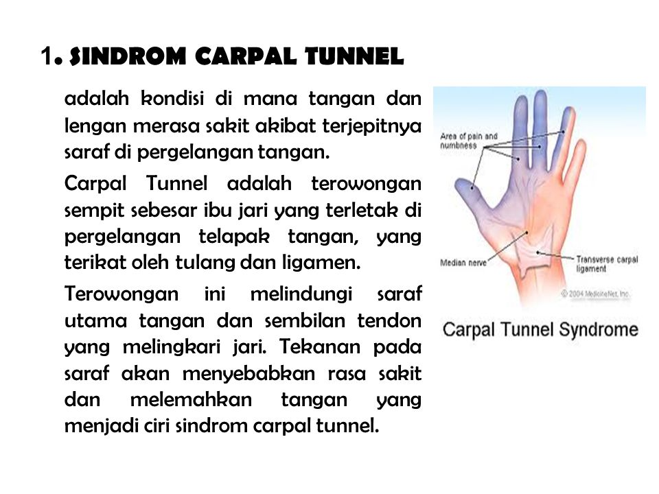 1. SINDROM CARPAL TUNNEL