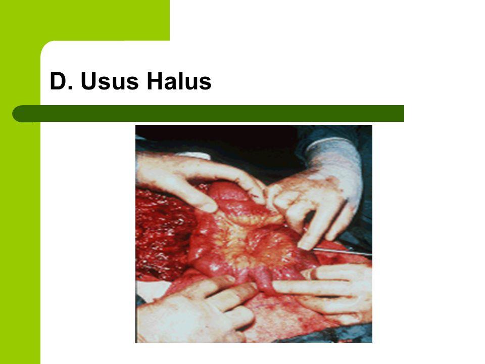 D. Usus Halus