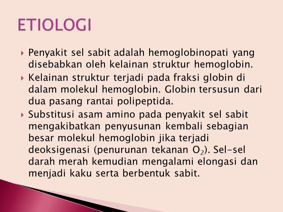 ETIOLOGI Penyakit sel sabit adalah hemoglobinopati yang disebabkan oleh kelainan struktur hemoglobin.