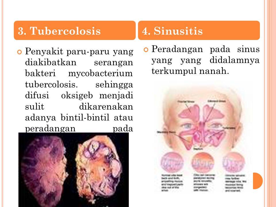 3. Tubercolosis 4. Sinusitis
