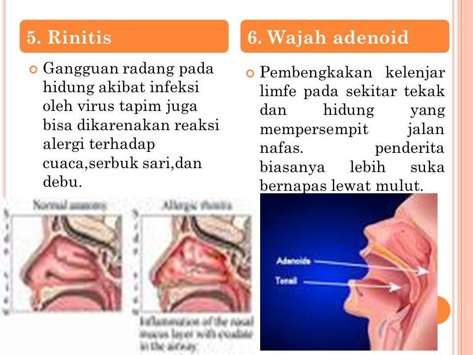 5. Rinitis 6. Wajah adenoid.