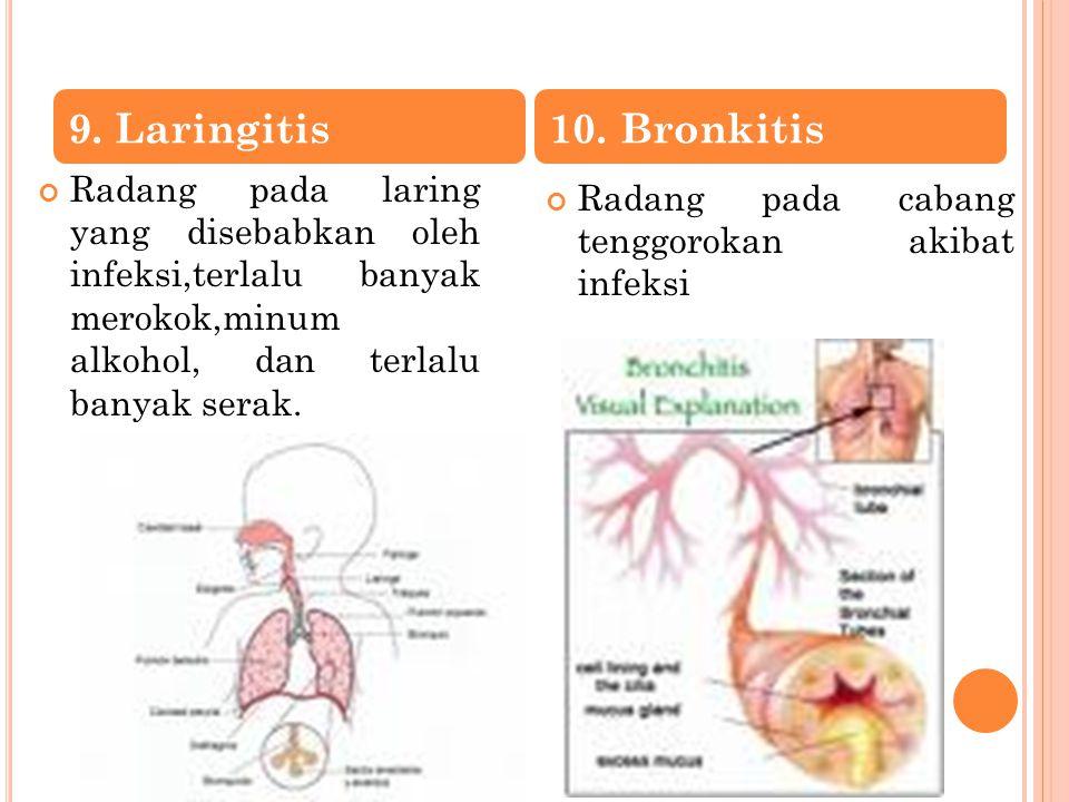 9. Laringitis 10. Bronkitis. Radang pada laring yang disebabkan oleh infeksi,terlalu banyak merokok,minum alkohol, dan terlalu banyak serak.