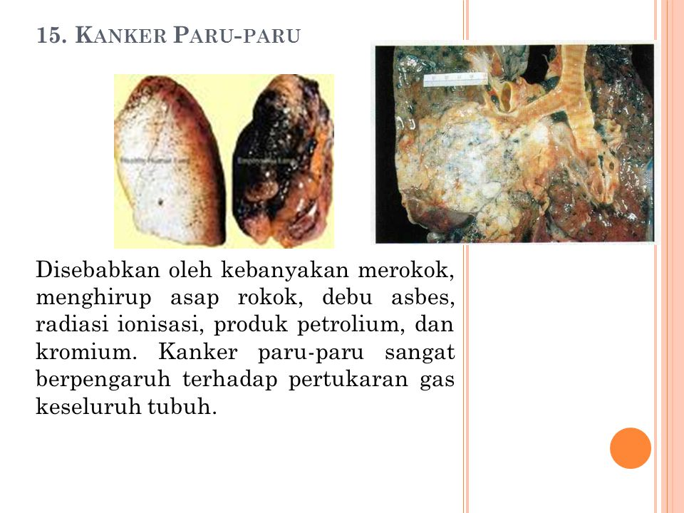15. Kanker Paru-paru