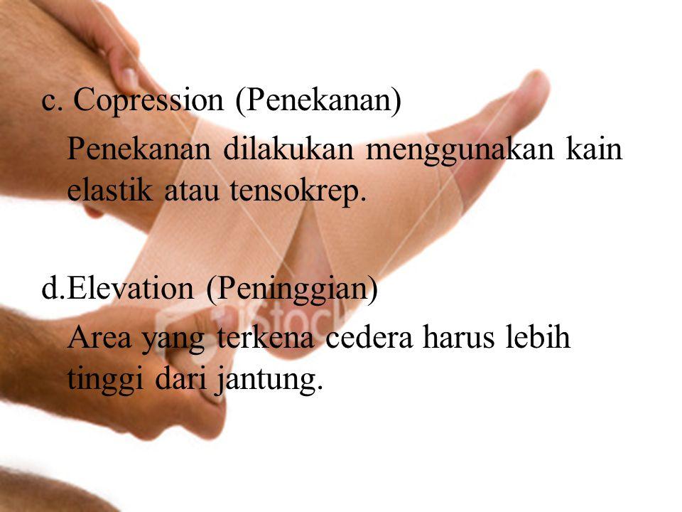 c. Copression (Penekanan) Penekanan dilakukan menggunakan kain elastik atau tensokrep.