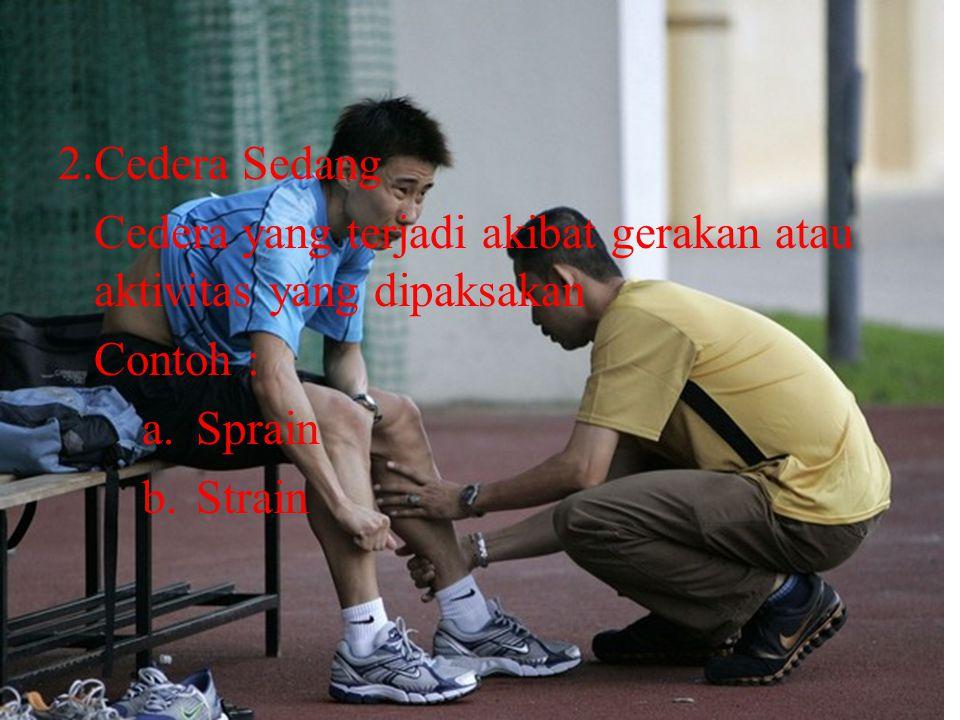 2.Cedera Sedang Cedera yang terjadi akibat gerakan atau aktivitas yang dipaksakan. Contoh : Sprain.