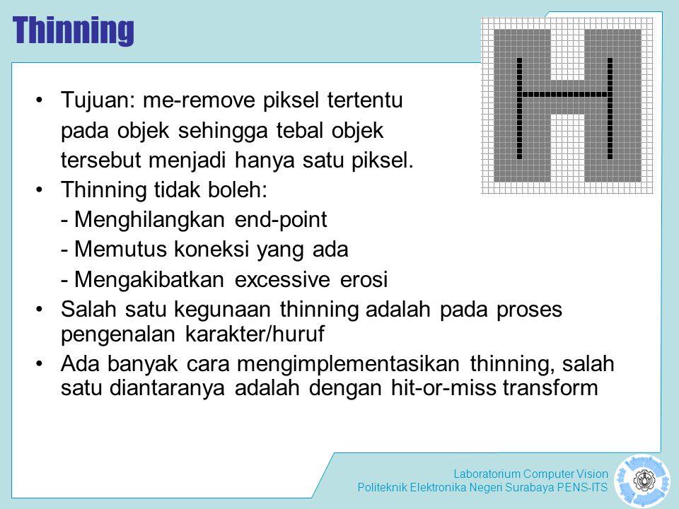 Thinning Tujuan: me-remove piksel tertentu