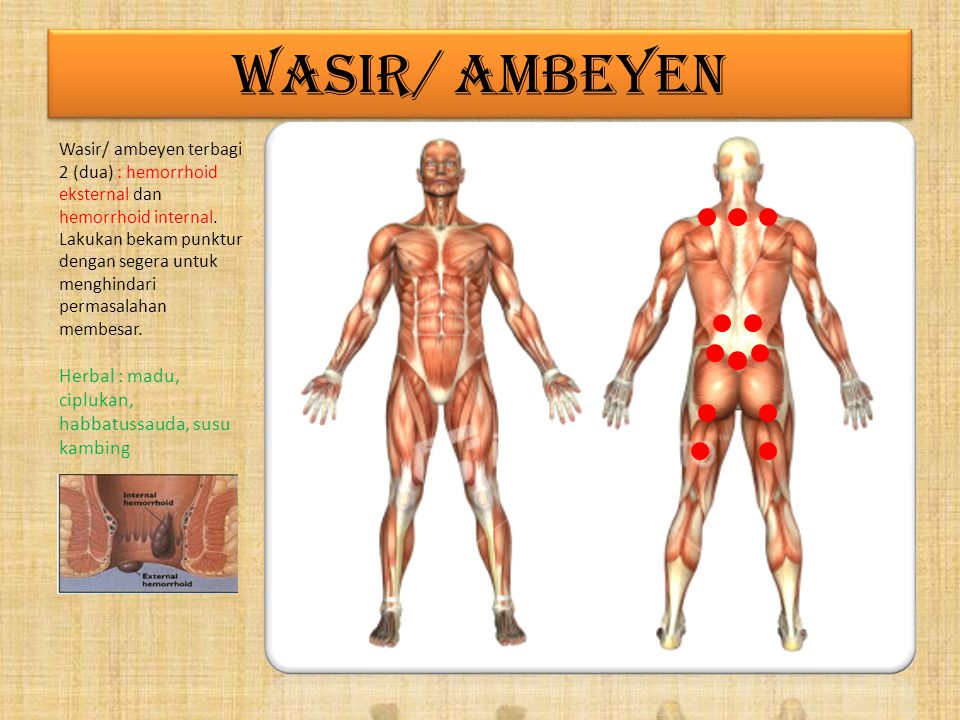 WASIR/ AMBEYEN Herbal : madu, ciplukan, habbatussauda, susu kambing