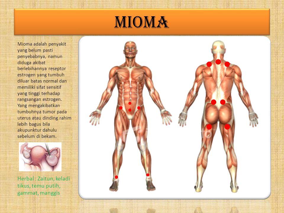 MIOMA Herbal : Zaitun, keladi tikus, temu putih, gammat, manggis