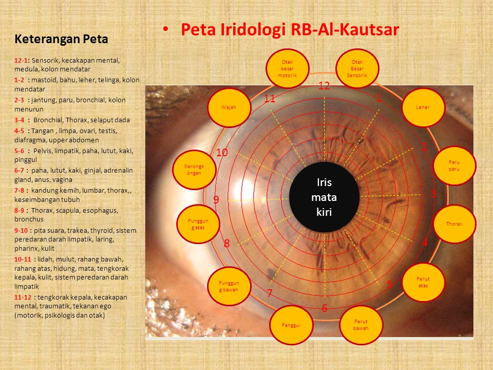 Peta Iridologi RB-Al-Kautsar