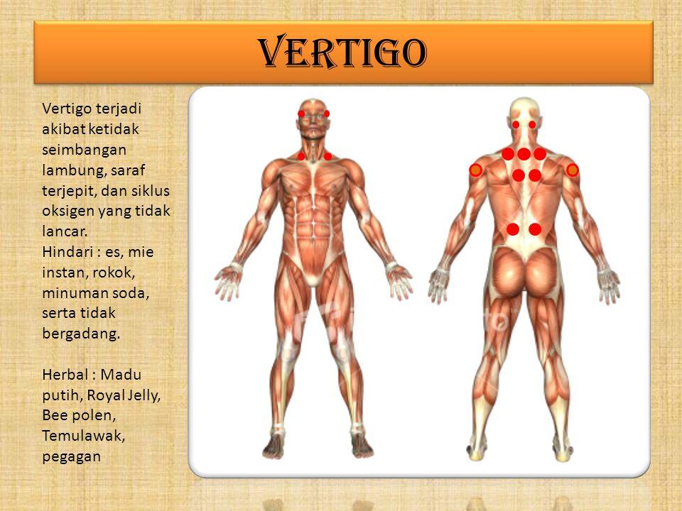VERTIGO Vertigo terjadi akibat ketidak seimbangan lambung, saraf terjepit, dan siklus oksigen yang tidak lancar.