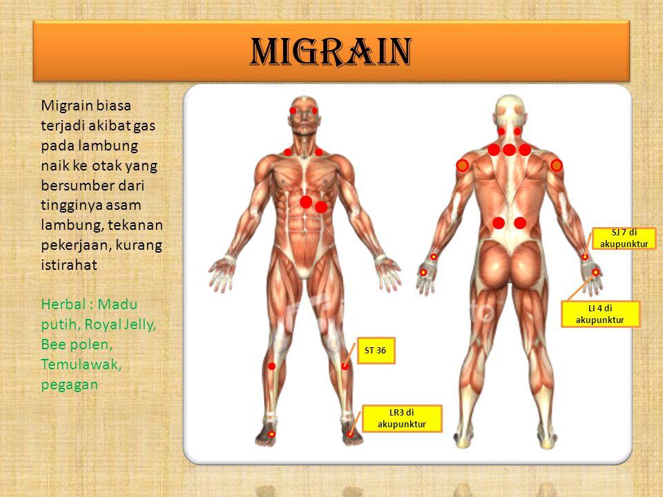 MIGRAIN Migrain biasa terjadi akibat gas pada lambung naik ke otak yang bersumber dari tingginya asam lambung, tekanan pekerjaan, kurang istirahat.
