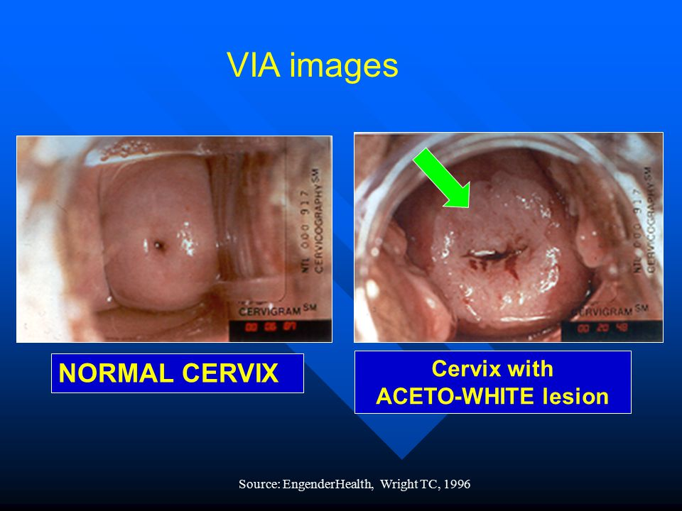 VIA images NORMAL CERVIX Cervix with ACETO-WHITE lesion