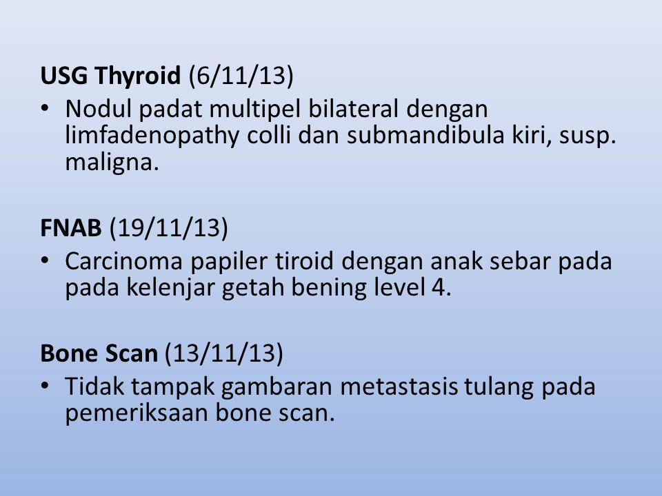 USG Thyroid (6/11/13) Nodul padat multipel bilateral dengan limfadenopathy colli dan submandibula kiri, susp. maligna.