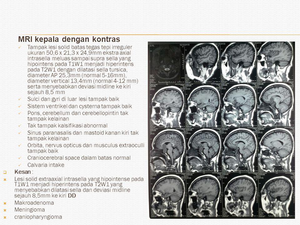 MRI kepala dengan kontras
