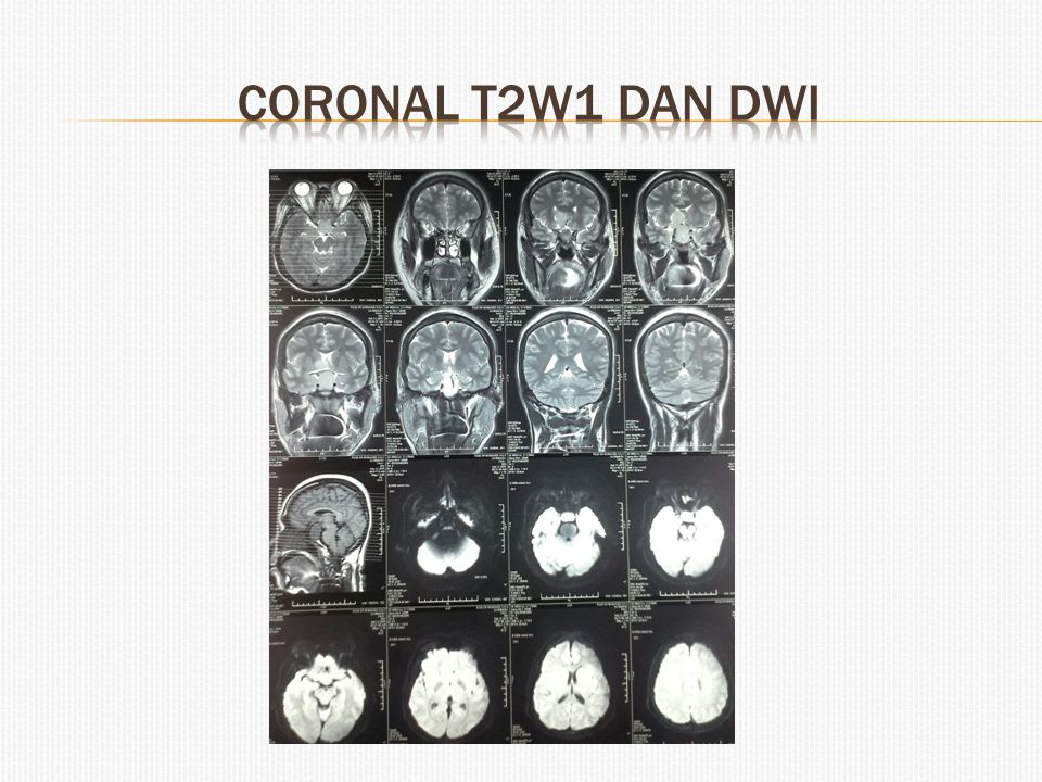 Coronal T2w1 dan dwi