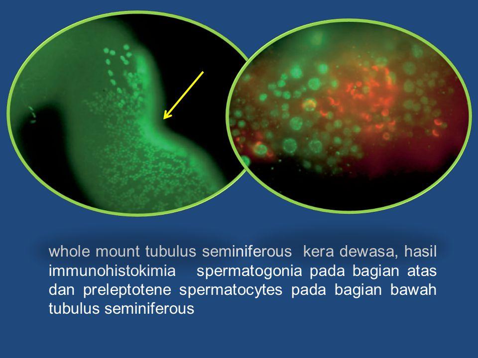 whole mount tubulus seminiferous kera dewasa, hasil immunohistokimia spermatogonia pada bagian atas dan preleptotene spermatocytes pada bagian bawah tubulus seminiferous