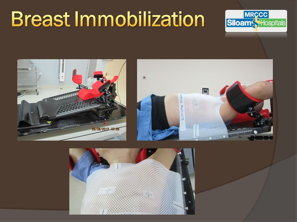 Breast Immobilization