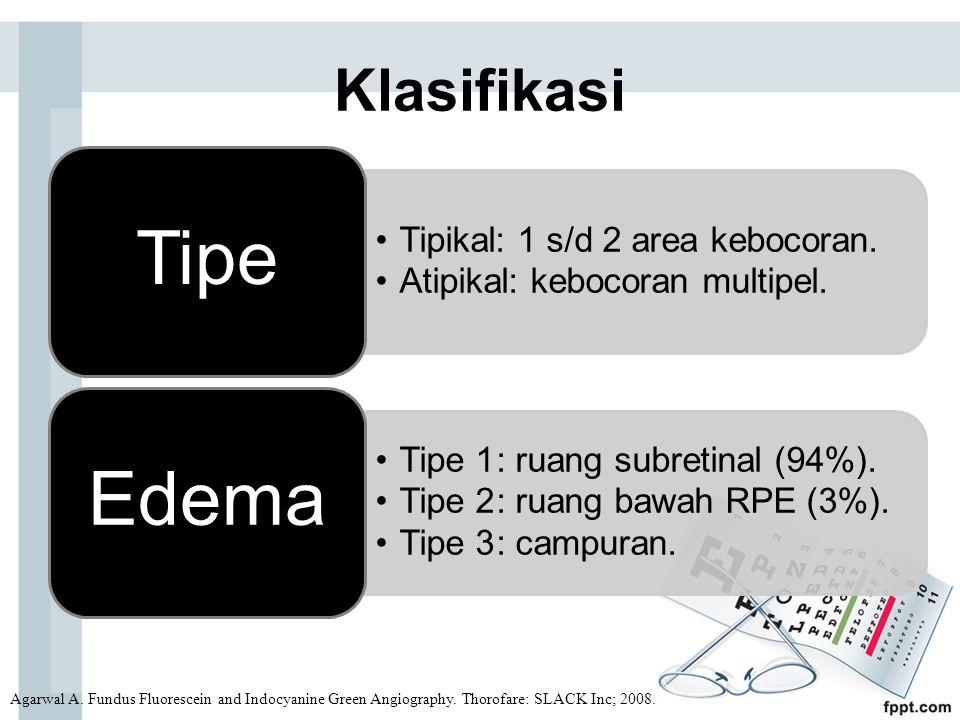 Klasifikasi Tipe. Tipikal: 1 s/d 2 area kebocoran. Atipikal: kebocoran multipel. Edema. Tipe 1 : ruang subretinal (94%).