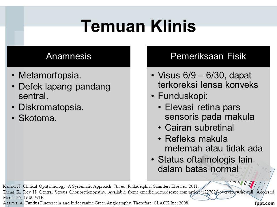 Temuan Klinis Anamnesis Metamorfopsia. Defek lapang pandang sentral.