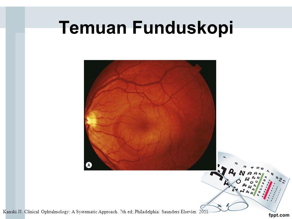 Temuan Funduskopi Kanski JJ. Clinical Ophtalmology: A Systematic Approach.