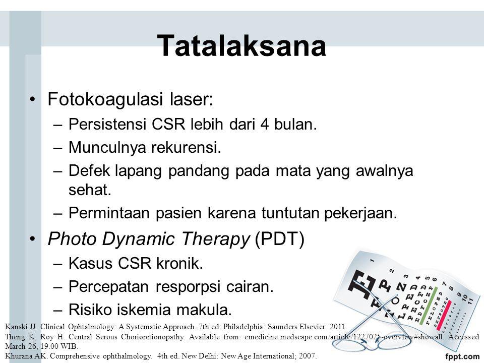 Tatalaksana Fotokoagulasi laser: Photo Dynamic Therapy (PDT)