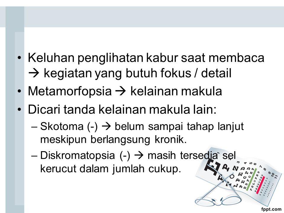 Metamorfopsia  kelainan makula Dicari tanda kelainan makula lain: