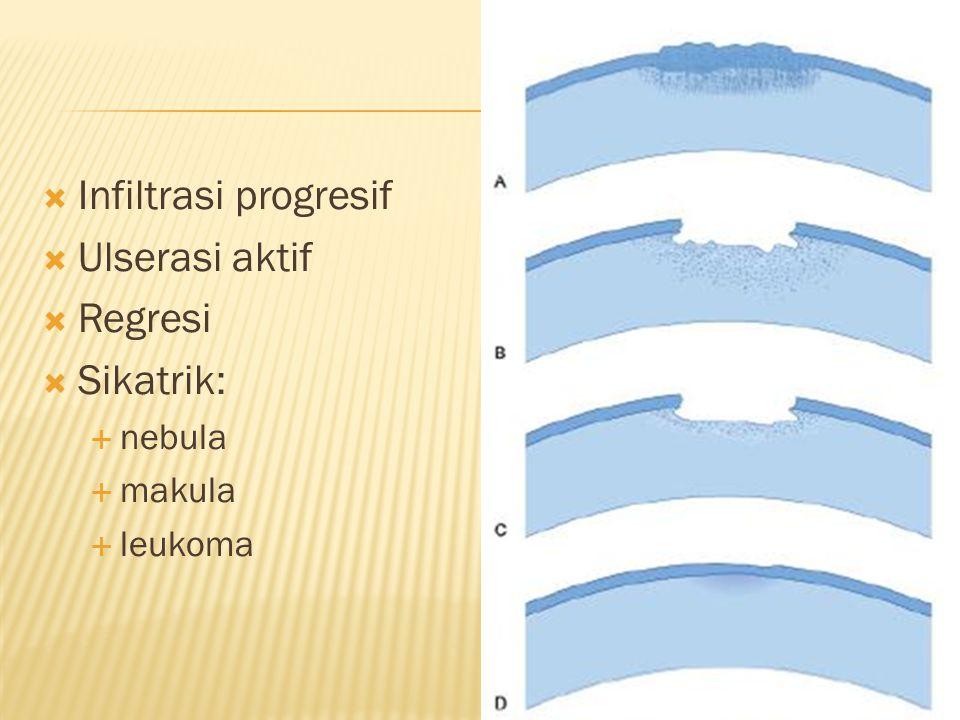 Infiltrasi progresif Ulserasi aktif Regresi Sikatrik: nebula makula