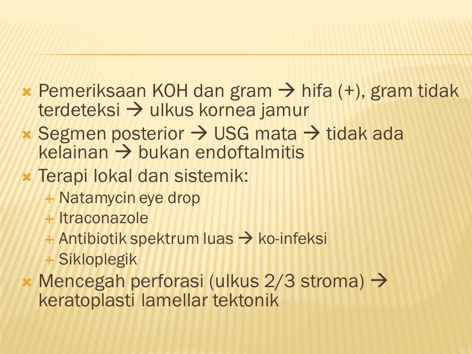 Segmen posterior  USG mata  tidak ada kelainan  bukan endoftalmitis