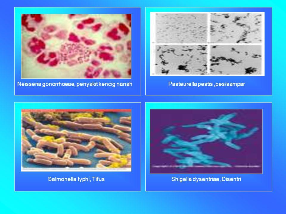 Neisseria gonorrhoeae, penyakit kencig nanah