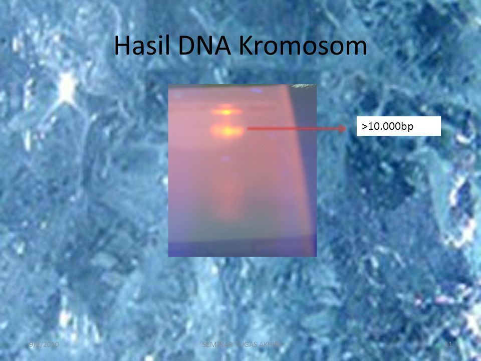 Hasil DNA Kromosom >10.000bp 9/2/2010 SEMINAR TUGAS AKHIR