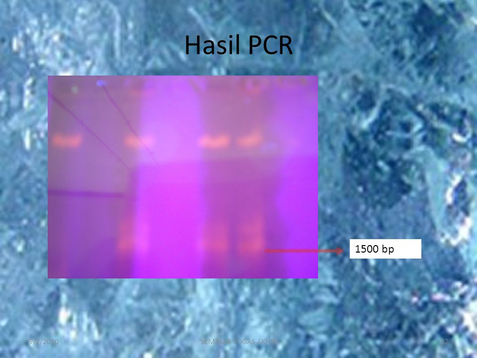 Hasil PCR 1500 bp 9/2/2010 SEMINAR TUGAS AKHIR