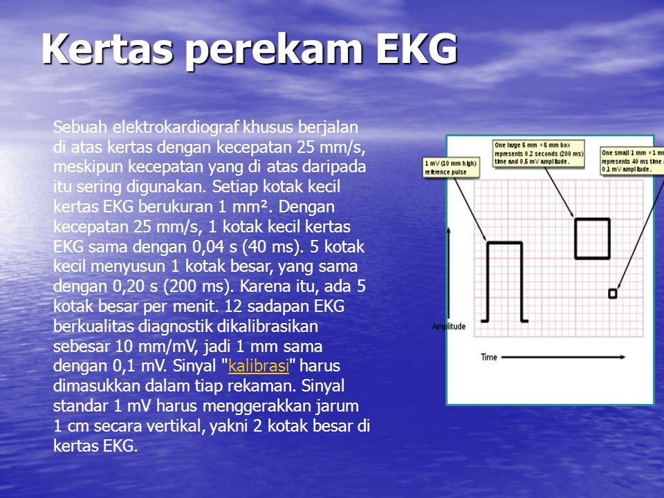 Kertas perekam EKG
