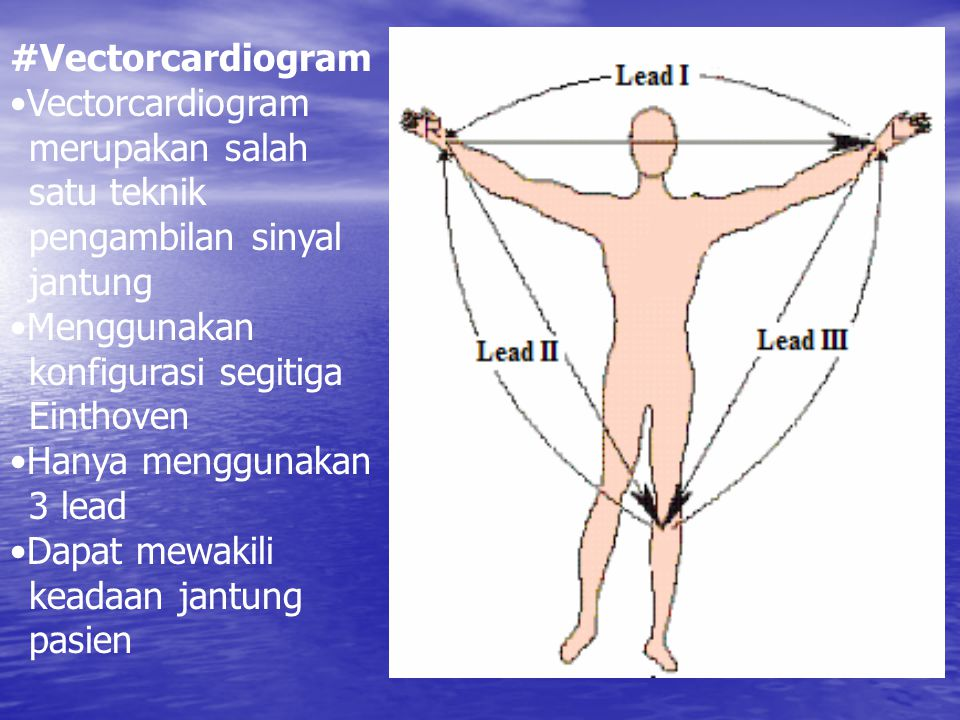 #Vectorcardiogram •Vectorcardiogram merupakan salah satu teknik pengambilan sinyal jantung. •Menggunakan konfigurasi segitiga Einthoven.
