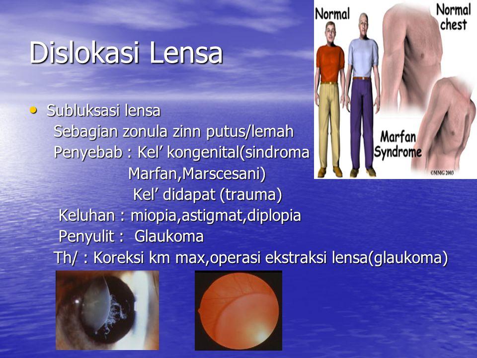 Dislokasi Lensa Subluksasi lensa Sebagian zonula zinn putus/lemah