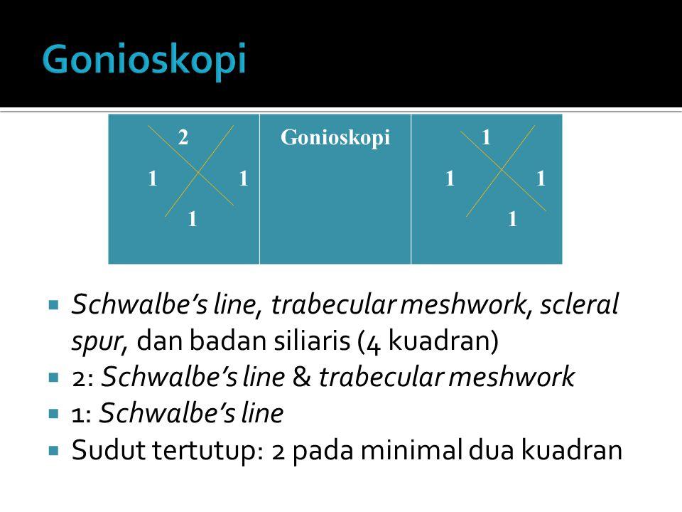 Gonioskopi 2. 1 1. 1. Gonioskopi. Schwalbe's line, trabecular meshwork, scleral spur, dan badan siliaris (4 kuadran)