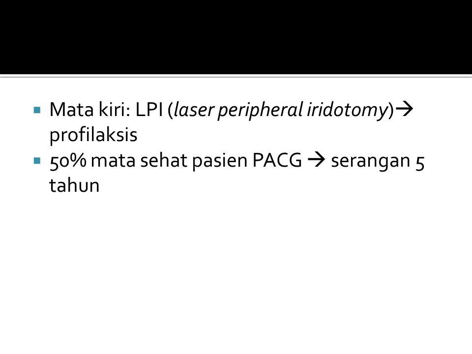 Mata kiri: LPI (laser peripheral iridotomy) profilaksis