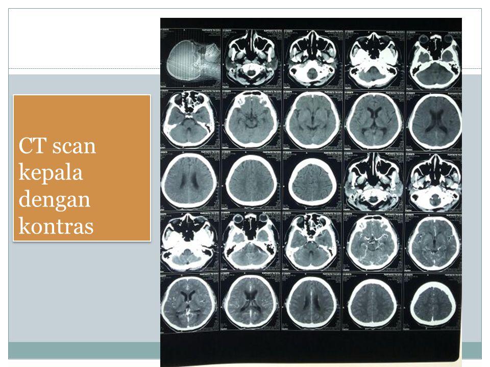 CT scan kepala dengan kontras
