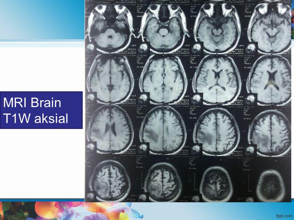 MRI Brain T1W aksial