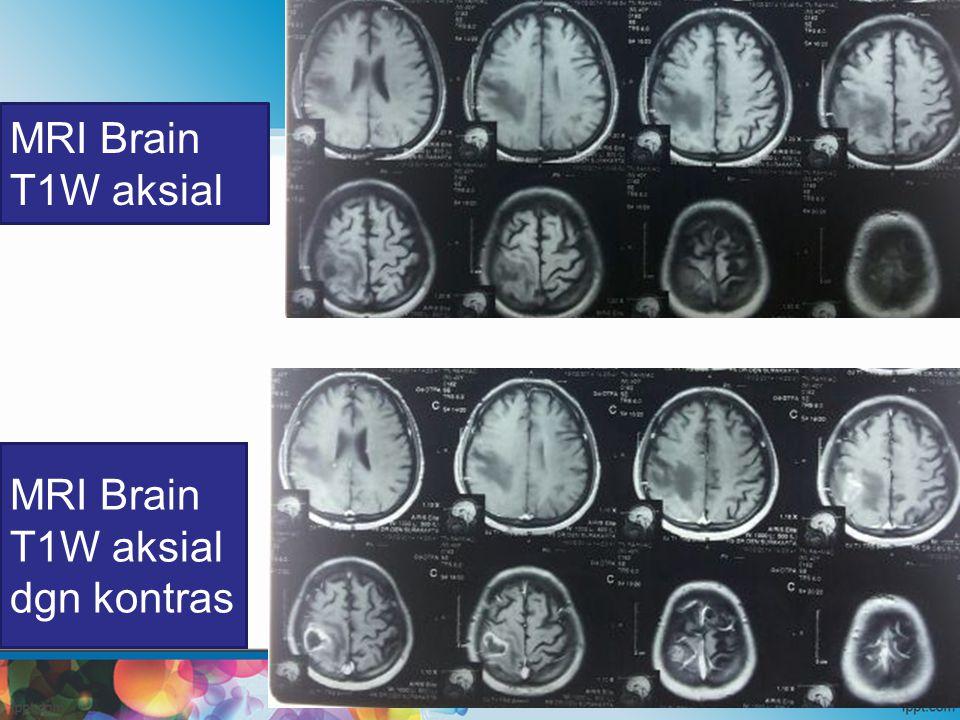 MRI Brain T1W aksial dgn kontras