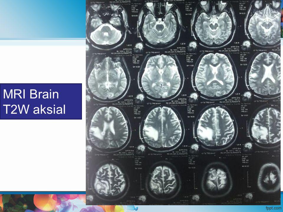MRI Brain T2W aksial
